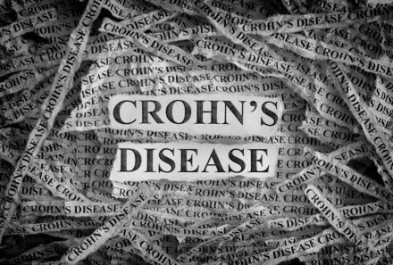 L'ostéopathie et la maladie de Crohn